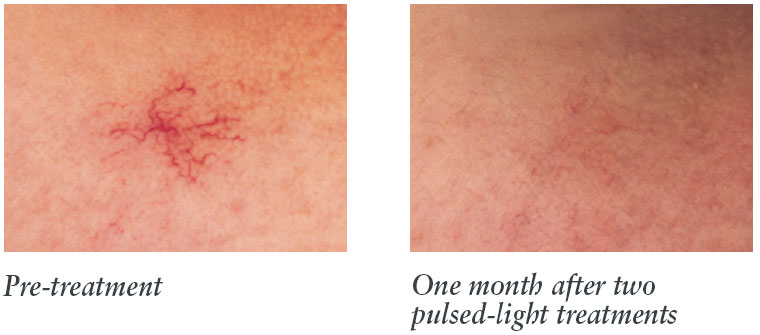 Laser Skincare Treatment